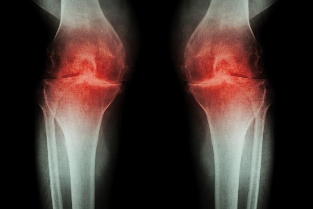 artroza articulațiilor piciorului și tratament