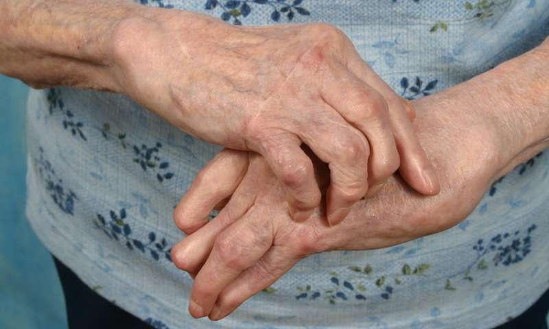 Care este diferenta dintre artrita si artroza? - thelightdesign.ro