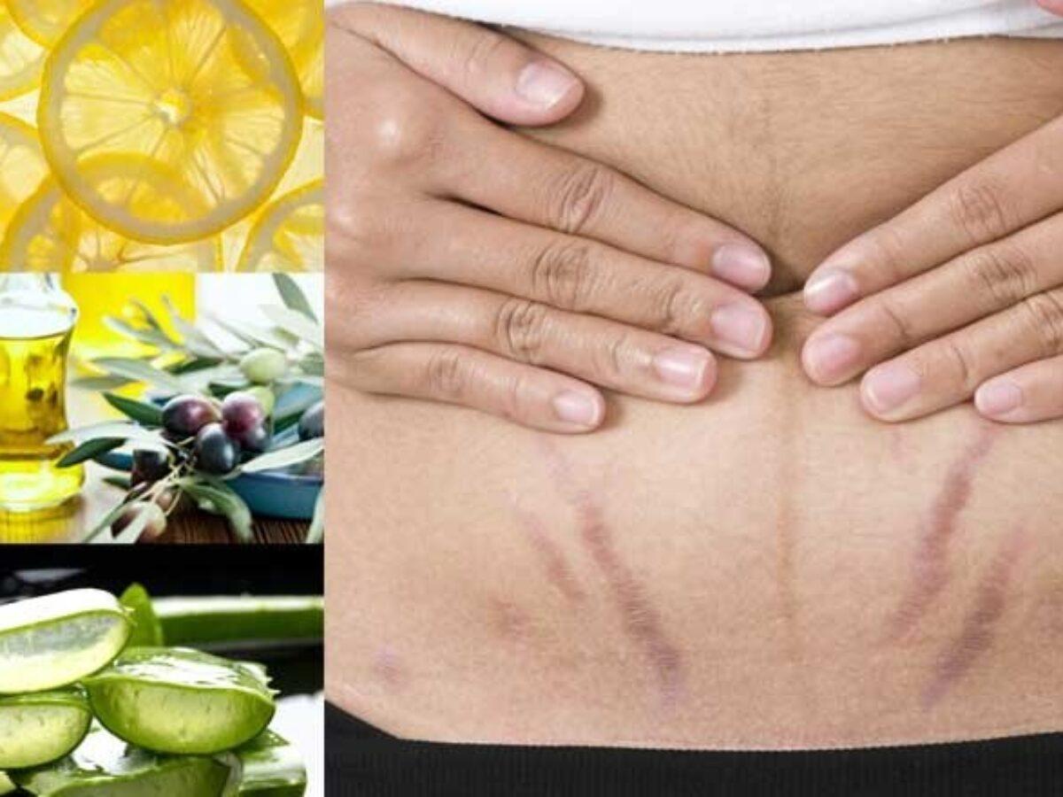 evitați vergeturile de pierdere în greutate