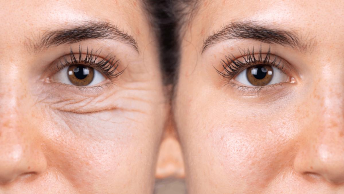 cum să îmbunătățiți vederea cu remedii casnice)