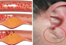 10 simptome posibile ale arterelor infundate pe care trebuie sa le cunoasteti