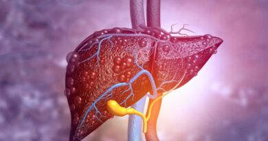 Ciroza hepatica – Ce este, cauze, severitate, simptome si tratament
