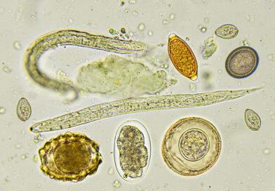 Paraziti intestinali: tipuri, cauze si tratament